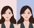 战痘士如何转身成为漂亮人妻 且看成功的逆转故事
